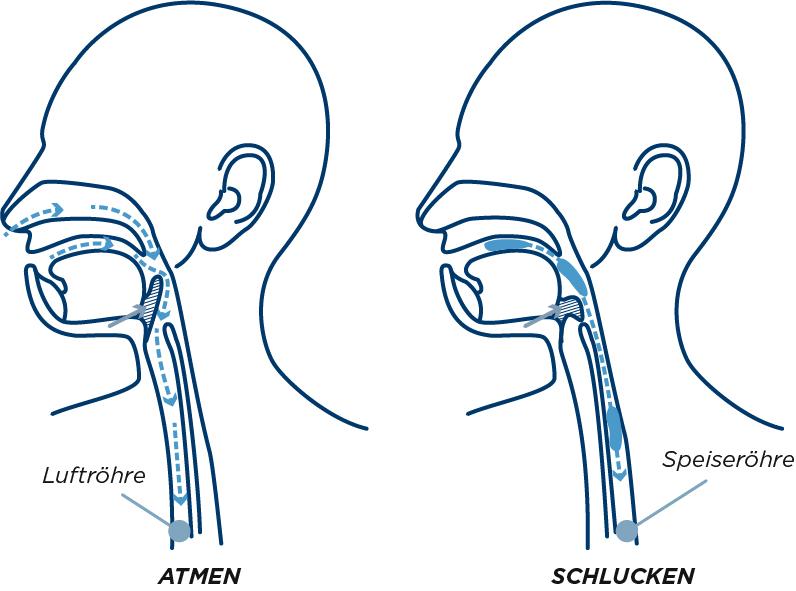Schlucken und Atmen mit Sialorrhoe